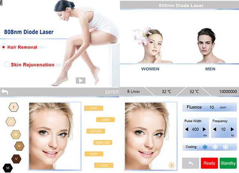 High Quality 808nm diode laser hair removal beauty salon equipment